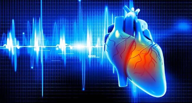 sex, heart attack