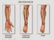 Cara Mengobati Tulang Patah atau Retak