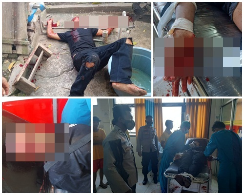 Idul Adha Berdarah, Pria di Manggelewa Alami Luka Mengenaskan Diamuk Senjata Tajam
