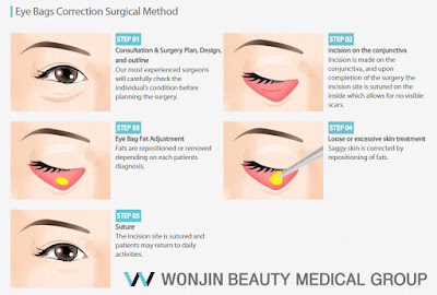 Boost Your Youthful Looks Through Eyelid Surgery Wonjin