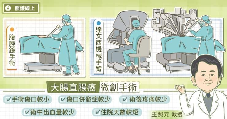 大腸直腸癌微創手術
