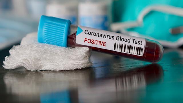 المهدية : تسجيل 53 إصابة جديدة بفيروس كورونا