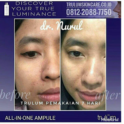 Jual Obat Penghilang Kantung Mata Trulum Skincare Lore Selatan Poso