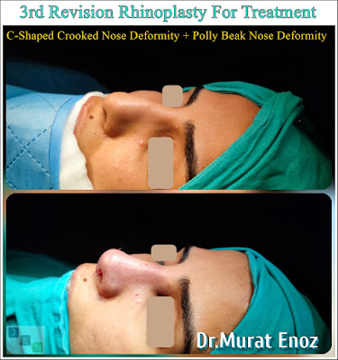 """3rd Revision Rhinoplasty For Treatment of """"C-Shaped Crooked Nose Deformity"""" + """"Polly Beak Nose Deformity""""  Polly Beak Deformity,Pollybeak Deformity Surgery in Istanbul,Pollybeak Deformity,parrot beak deformity,"""
