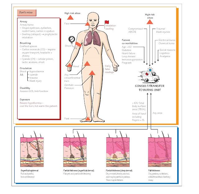Burns, The burn, Intravenous fluids, Minor burns, Chemical burns,