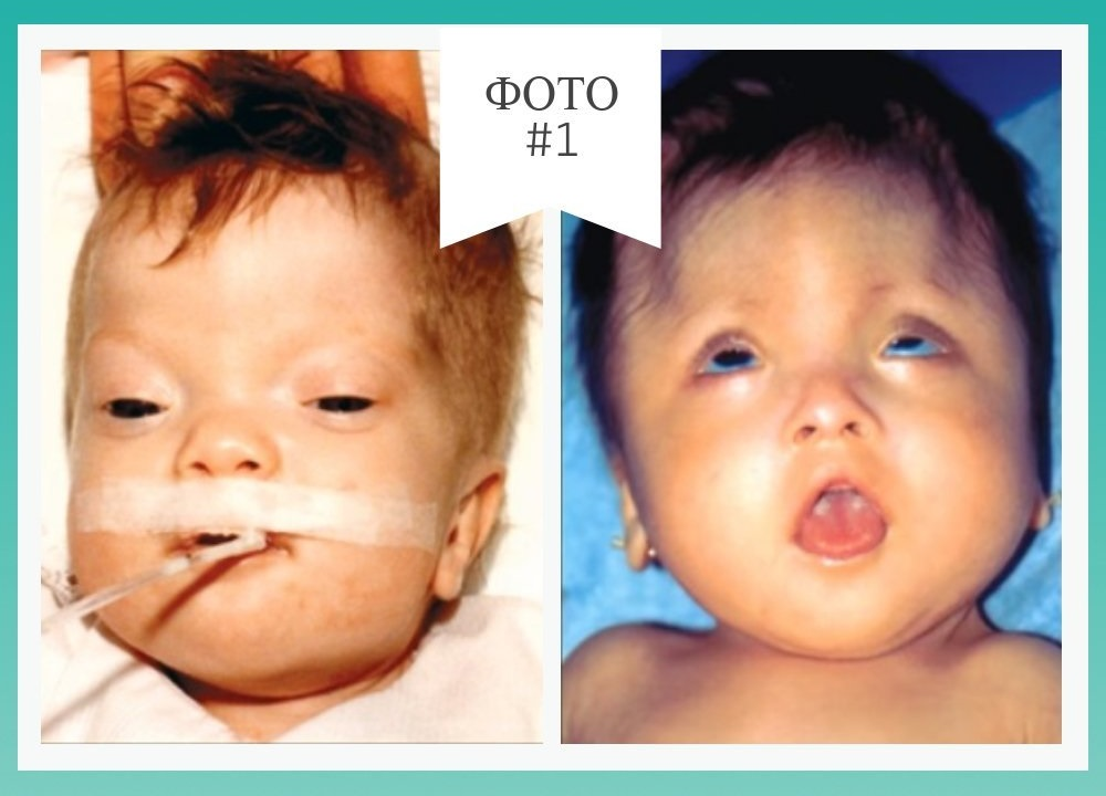 фото больных новорожденных с синдромом орбели