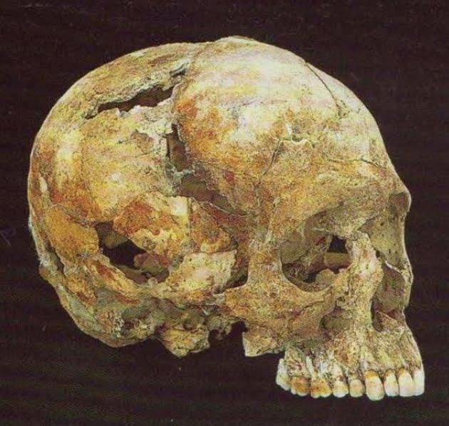 Πότε τα οστά έχουν σχέση με τον Μπουθ