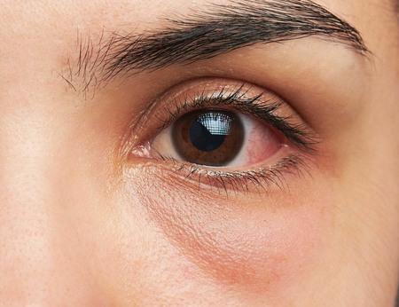 Obat Sakit Mata Alami