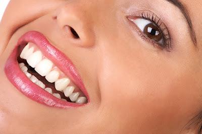 beyaz dişlere nasıl kavuşurum