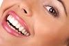 Evde Diş Beyazlatma Yöntemleri,Sağlıklı Dişlere Merhaba