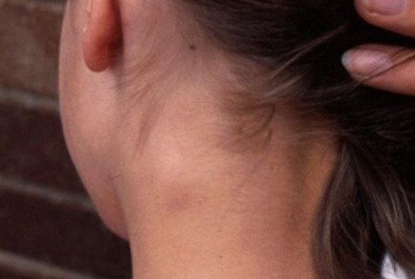 Bahaya Penyakit Kanker Kelenjar Getah Bening Dan Cara Mengobatinya