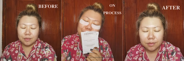 Lanore-Whitening-Hydrogel-Eye-Patch