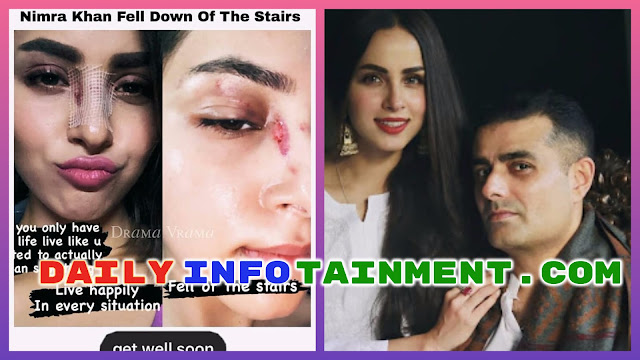 Actress Nimra Khan fell from Stairs and Injured her Face