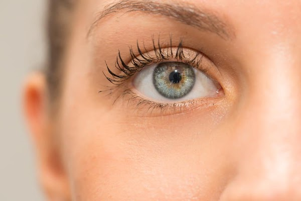 Causes of Chocolate Spots (Freckles) in the Eyes, Plus the Signs