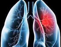 Langkah Pertama. Hindari paparan karbon monoksida dan jangan menjadi perokok pasif. Sebaiknya, hindari orang-orang yang sering merokok di sekitar Anda. Ini bukan cuma untuk membantu Anda menahan godaan untuk kembali merokok, tetapi juga untuk kesehatan paru-paru Anda.  Langkah Kedua. Makan nanas bisa menjadi salah satu solusi terbaik untuk Anda. Bromelin, senyawa yang ditemukan dalam nanas, dapat bertindak sebagai pembersih bagi paru-paru Anda. Hal ini memungkinkan Anda untuk menarik lebih banyak oksigen dan mengambil napas lebih dalam dengan meningkatkan elastisitas paru-paru.  Langkah Ketiga. Ciba periksa kebiasaan makan Anda dan buatlah sedikit perubahan bila diperlukan. Ada beberapa makanan, rempah-rempah dan tanaman herbal yang memiliki efek positif pada paru-paru Anda. Makanan seperti alpukat, jahe dan lobak, sangat baik untuk kesehatan paru-paru Anda.  Langkah Keempat. Rajin melakukan latihan fisik bisa menjadi salah satu cara terbaik untuk menguatkan paru-paru Anda. Jika Anda telah merokok selama beberapa tahun atau tidak terbiasa berolahraga, mulailah dengan latihan fisik yang ringan dan kemudian mencoba meningkatkannya secara bertahap dari waktu ke waktu.  Langkah Kelima. Lakukan latihan pernapasan setiap hari. Ada beberapa latihan pernapasan yang dapat membantu meningkatkan fungsi paru-paru.  Itulah Tips Membersihkan Paru-Paru Dengan mudah membersihkan paru-paru untuk mantan perokok. Semoga bermanfaat dan Anda bisa segera pulih.