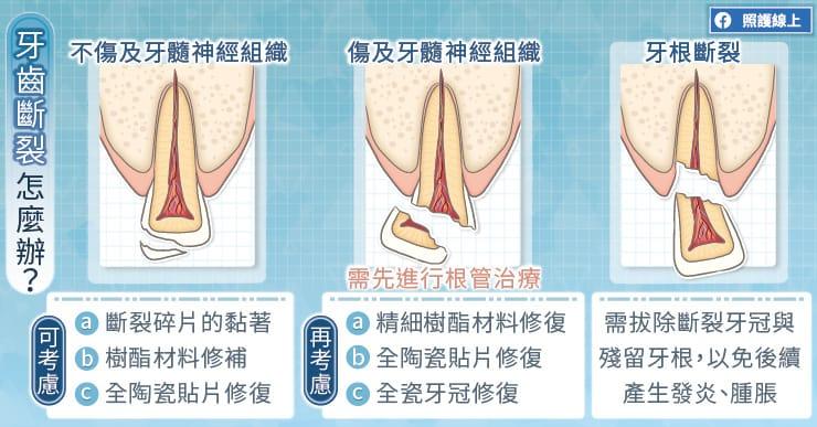 牙齒斷裂怎麼辦?