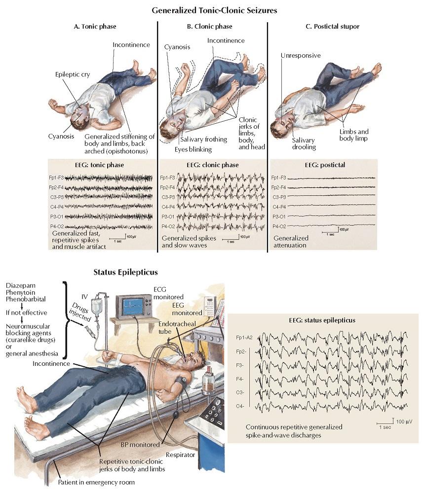 Epilepsy: Generalized Seizures and Status Epilepticus