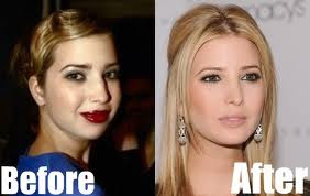 Ivanka Trump Plastic Surgery Breast Implants And Nose Job