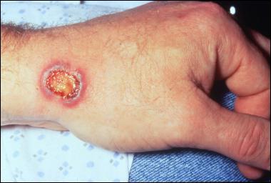 Granulomatosis with polyangiitis