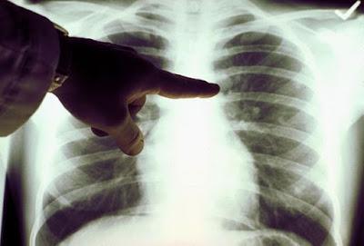 pengobatan flek paru paru