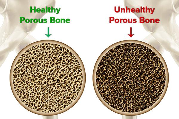 Οστεοπόρωση: Αντιστροφή της νόσου με φυσικές θεραπείες!