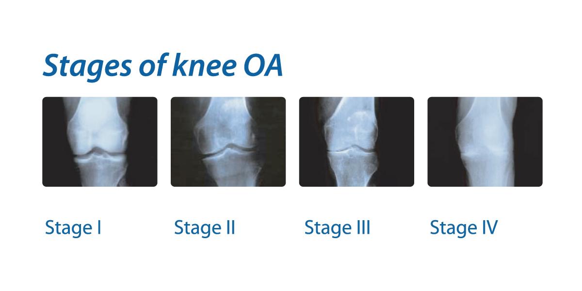 復健科吳韋廷醫師增生治療plus增生療法: 膝蓋痛-退化性膝關節炎