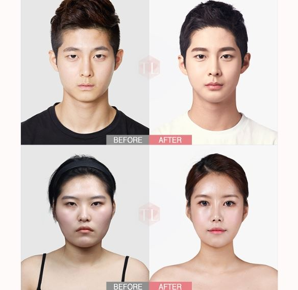 Tl Plastic Surgery Clinic Korea Tl Male Plasic Surgery