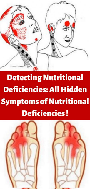 Detecting Nutritional Deficiencies: All Hidden Symptoms of Nutritional Deficiencies