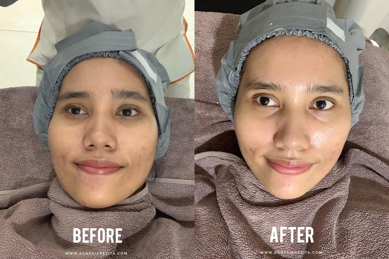 Menghilangkan Komedo Dan Bruntusan Dengan Facial Treatment Signature Dpct Deep Pore Cleansing Therapy Di Erha Clinic Medan Agnesiarezita Beauty Blogger Medan