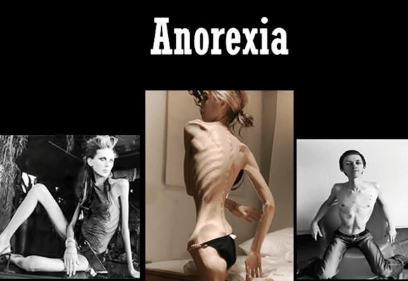 Anorexia-transtorno
