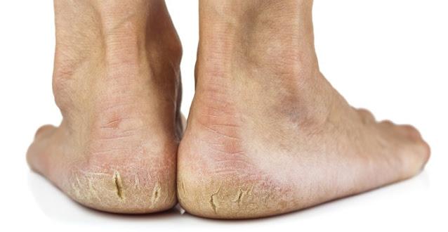 Ai calcaie crepate?Scapa de ele cu remedii naturale