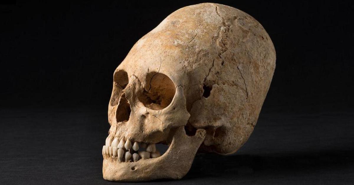 Deformação craniana artificial