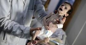 Ésta bebé murió en Siria por causa de la guerra que enfrentan.