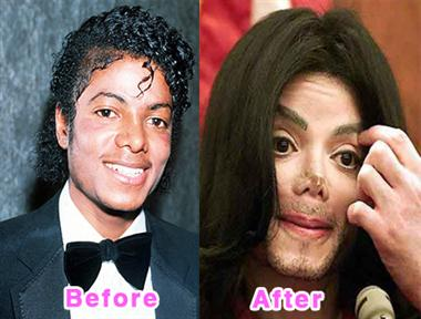 Before and After Plastic Surgery Gone Wrong