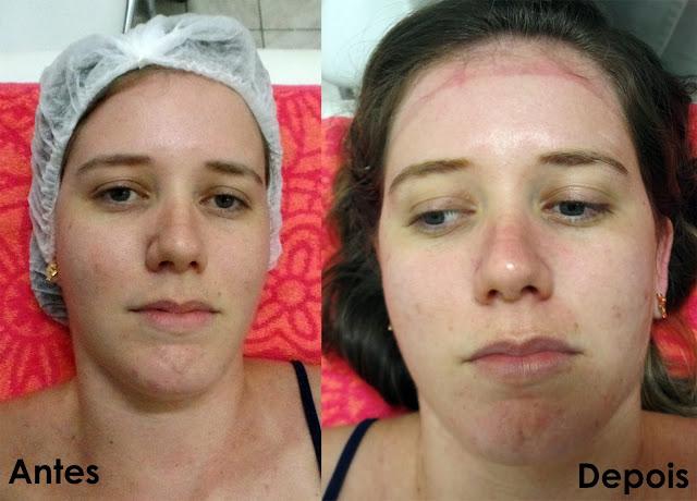 Antes e depois da limpeza de pele