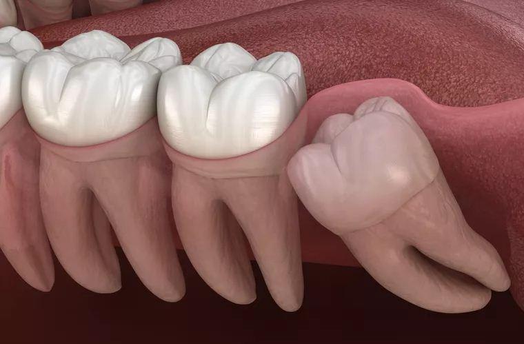 Wisdom Tooth Surgery FAQ