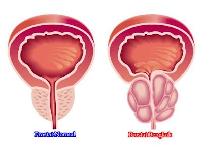 Cara Mengobati Prostat Bengkak Secara Alami Sampai Tuntas