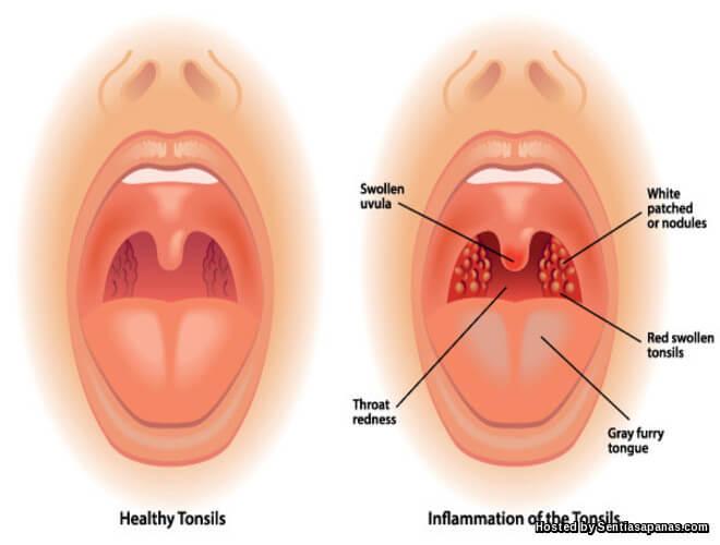 Penyebab jangkitan tonsil