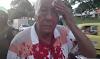 Fuerte golpiza en la Ferrocarril: Padre del técnico del Deportes Tolima fue víctima de los 'limpiavidrios'