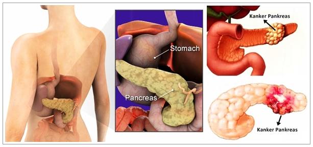 Pengobatan Herbal Kanker Pankreas Secara Alami Tanpa Operasi