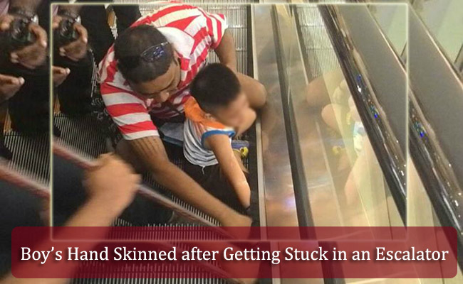 Boy's Hand Skinned after Getting Stuck in an Escalator