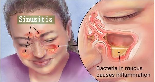 Nama Obat Sinusitis Di Apotik
