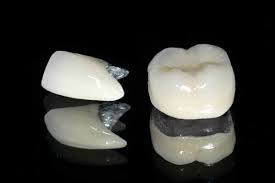 bọc răng sứ titan kim loại