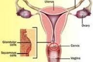 Gambar Obat Alami Mencegah Kanker Serviks