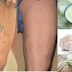 Natural Effective Remedies for Varicose Vein Removal!