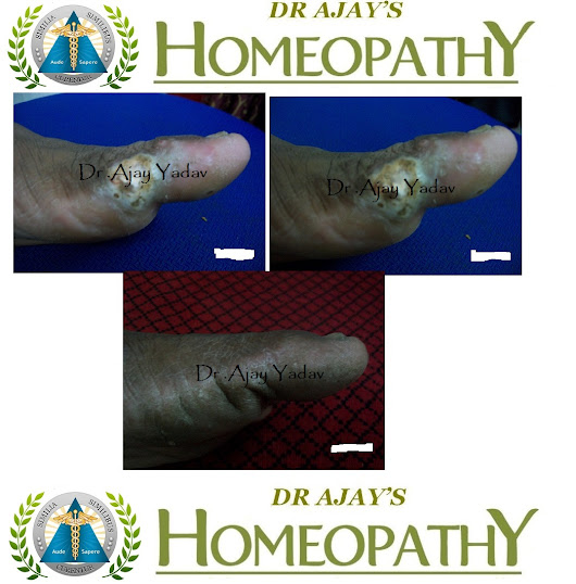 HOMEOPATHY FOR WARTS