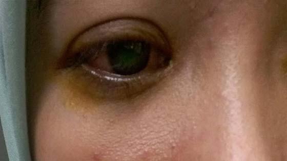 Pakai contact lens sembarangan tanpa kelulusan, gadis ini menyesal seumur hidup
