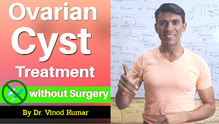 Naturopathy Treatment of Ovarian Cyst
