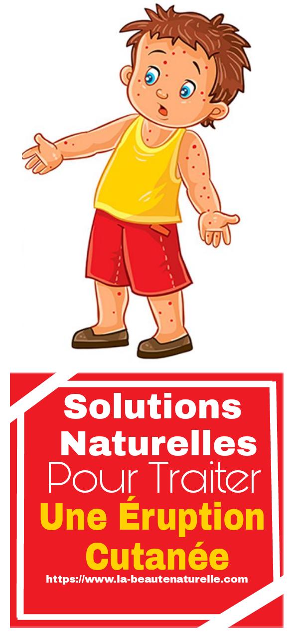 Solutions naturelles pour traiter une éruption cutanée