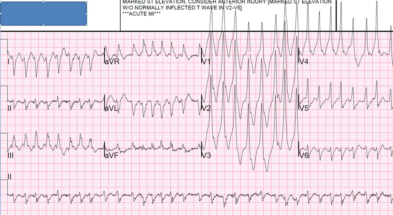 Atrial Excitation Fibrillation Pre